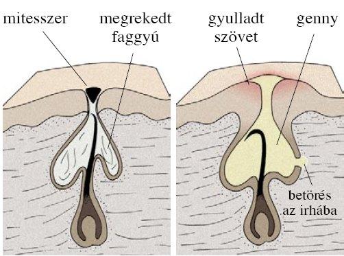 Illusztráció: mozaweb.hu